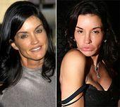 Prominente plastische Chirurgie Gesichter vor nach2 Promi plastische Chirurgie Gesichter: b …