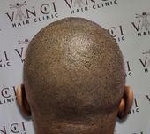 Realistic Hair Tattoos Eliminate Baldness Forever  – Vorsprung durch Technik