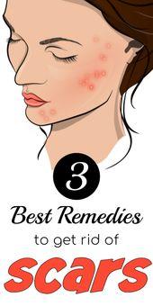 3 Bester Trick, um dunkle Flecken und Narben aus dem Gesicht zu entfernen – Skin Care