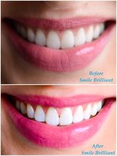 Cruel Teeth Whitening Products Makeup Tutorials #o…