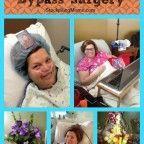 surviving bypass surgery