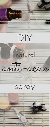 diy toner for pimples