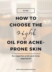 So wählen Sie das richtige Öl für zu Akne neigende Haut (kostenlose Anleitung) – Skin care