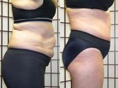 Non surgical fat reduction before and after.