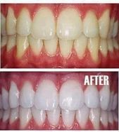 Home remedy for teeth whitening …. Mix a pea-sized amount of toothpaste with 1