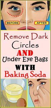 Dark Circles & Under Eye Bags & Backpulver & Zitrone entfernen !!! #bakingsodaremedie …   – Bodyweight Training