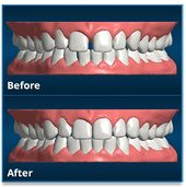 Get straighter teeth from home with SmileCareClub Invisible Aligners for up to 70% less than other treatment options!