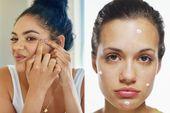 Wie Akne-Narben schnell loswerden – Hausmittel und beste Produkte zu versuchen – Self Care
