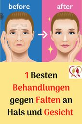 1 Besten Behandlungen gegen Falten an Hals und Gesicht