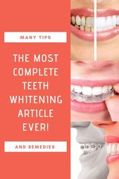Unequal Teeth Whitening Products Ideas #oralhealth…