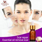 Neue 10 ml Anti Akne Flecken Narbe Reparatur Ätherisches Öl Lavendel Whitening Entfernen Ance Br … – makeup looks