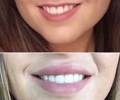 Before and After lip fillers / lip injections. Read all about my experience: cha – Cosmetic Surgery