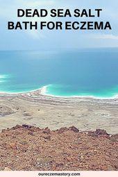 Dead Sea Salt Baths For Eczema Is It Good For You Dead Sea Salt Sea Salt Spray Essential Oils For Eczema