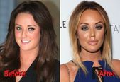 #Charlotte #Crosby #Job #LipArtDrawing #Nose #Surgery –