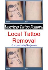 Buy tattoo removal laser.How is tattoo removal done.Latest laser tattoo removal technology – Tattoo Removal. 3853477456 #TattooMagazine