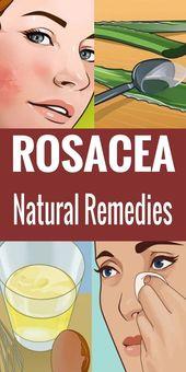 Natürliche Hausmittel gegen Rosacea, die Ihnen helfen könnten! #Lifestyle #Fitness