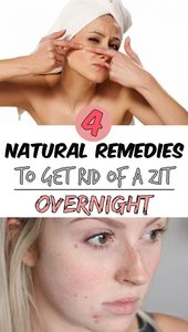 4 natural remedies to get rid of a zit overnight -…