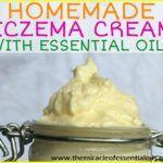 DIY Essential Oil Eczema Cream