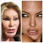 Jocelyn Wildenstein Cat Woman Plastic Surgery lip injections Before and After Ph