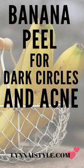 Wie man Bananenschale für Augenringe und Hautakne verwendet – Skin Care tips!