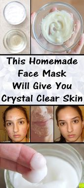 If you are suffering from wrinkles, saggy skin or acne, worry not, cause this ho…