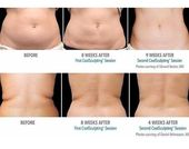 Amazing before and after photos after a COOLSCULPTING treatment. Are you ready t…