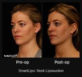 After neck liposuction, neck and chin area gets rejuvenated. This before and aft…