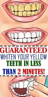 Talented Teeth Whitening Products Cheap #dentistas…