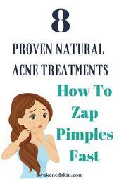 Wie Pickel schnell Zap- 8 Bewährte natürliche Akne-Behandlungen   – Teenage Skincare