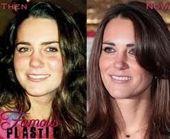Kate Middleton Nasenjob ????  #Kate #Middleton #Nasenjob #schönheitsoperationen…