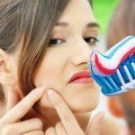 Apakah Bahaya Menggunakan Pasta Gigi Untuk Penghilang Jerawat Diwajah