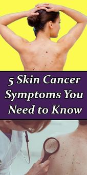 5 Skin Cancer Symptoms You Need to Know This Summer