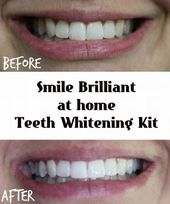 Smooth Teeth Whitening Professional #dentistselfie…