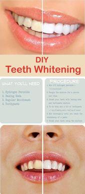 Sie können weiße Zähne nicht nur durch teure …