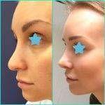 Nose Job To Fix Bulbous Nose Rhinoplasty Cost Pics Reviews Q A In 2020 Bulbous Nose Rhinoplasty Nose Job