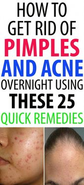 How to Get Rid of Pimples and Acne Overnight Using These 25 Quick Remedies