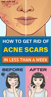 The 9 Magical Residence Treatments to Get Rid of Zits Scars Quick