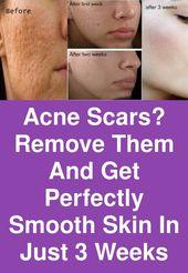 Aknenarben? Entfernen Sie sie und erhalten Sie eine perfekt glatte Haut in nur 3 Wochen – Beauty Tips