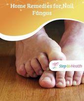 Photo of Startseite #Remedien für Nagelpilz #Nagel #fungus ist häufiger auf Ihrem #Toe …