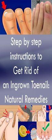 Instructions étape par étape pour se Débarrasser de l'un Eingewachsener Ongle d'orteil: Remèd…