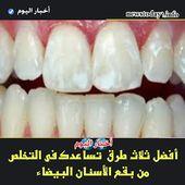 أفضل ثلاث طرق تساعدك فى التخلص من بقع الأسنان البيضاء Stained Teeth White Teeth Teeth