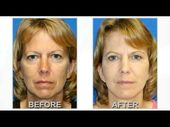 Fat Transfer to Face, Facelift Surgery & Upper Eyelid Surgery Before and After