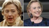 Hillary Clinton Face Lift Surgery Before And After Photos