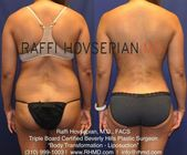 For that reason, it is smart to pick a plastic cosmetic surgeon that has a minim…