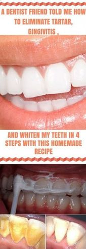 A DENTIST FRIEND TOLD ME HOW TO ELIMINATE TARTAR GINGIVITIS AND WHITEN MY TEETH …
