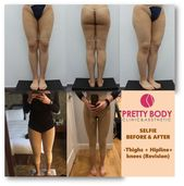 Thighs+Hipline+Knees Liposuction Revision. She is 24-years-…