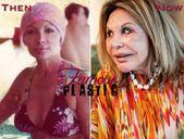 #Elsa #Patton #Plastic #Surgery     Elsa Patton before and after plastic surgery…