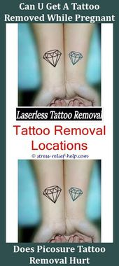 Tattoo Removal Service Can I Tattoo Over A Mole I Removed Can Tattoo Removal Make You Sick How Much Does Laser Tattoo Removal Hurt How Much Does It Co…