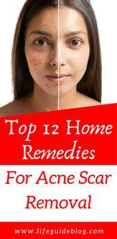 Willkommen in unserem Mini-Ratgeber zu den 12 wichtigsten Hausmitteln zur Entfernung von Aknenarben. Wir … – Hair & Beauty
