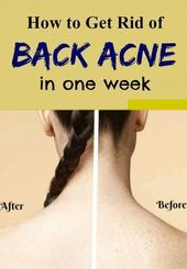Simple Tips To Get Rid Of Back Acne And Scars